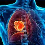 Akciğer Kanseri Tedavisinde Yenilikler